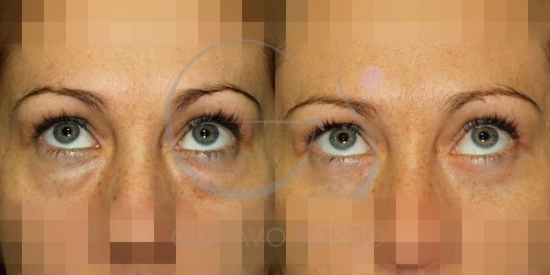Antes y después blefaroplastia inferior mujer