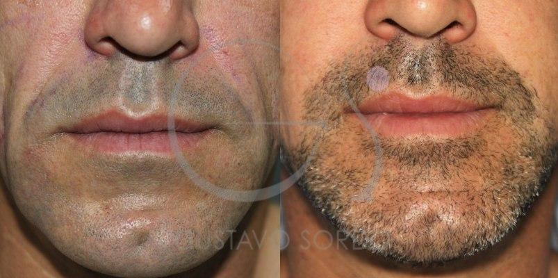Antes y después lipofilling en hombre de 43 años