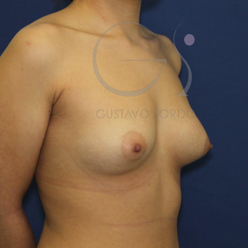 El aumento del pecho quirúrgico