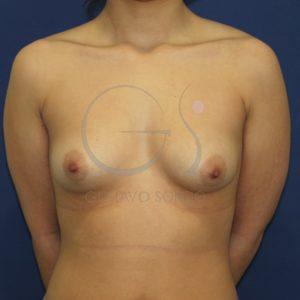 Mama tuberosa antes del aumento de pecho