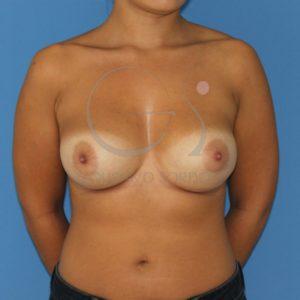 Mama tuberosa después del aumento de pecho