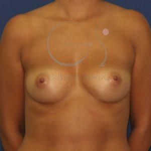 Antes de la operación de aumento de pecho