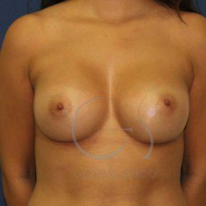 Después de la operación de aumento de pecho