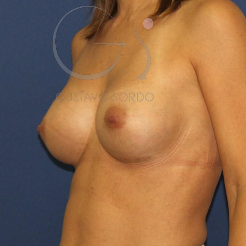 "Aumento de senos con tu propia grasa vs la técnica ""24h Recovery"" del Dr.Sordo"