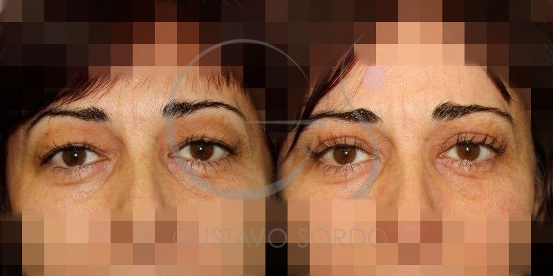 Blefaroplastia superior en mujer de 43 años con retirada de grasa: Fotos antes y después
