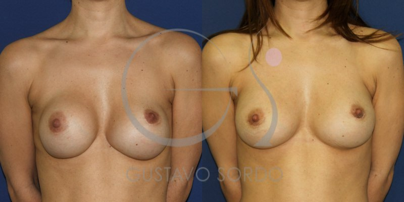 Segunda operación de pecho en mujer de 36 años: Fotos antes y después