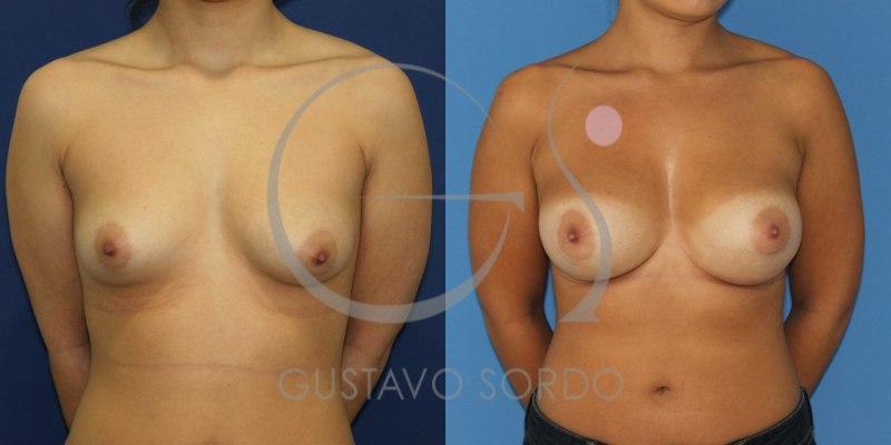 Mama tuberosa sometida a un aumento de pecho: Fotos del antes y después
