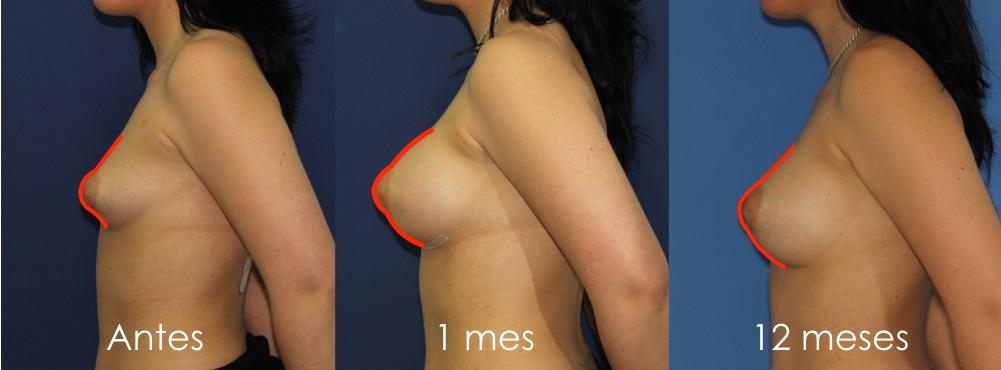 Evolución de un pecho con mamas tuberosas tra operarse: antes, un mes y 12 meses