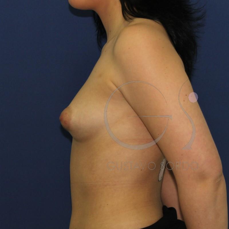 antes de una aumento de pecho, mama tuberosa, perfil