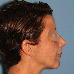 Foto del resultado tras someterse a una cirugía de rinoplástia y lipofilling de mentón