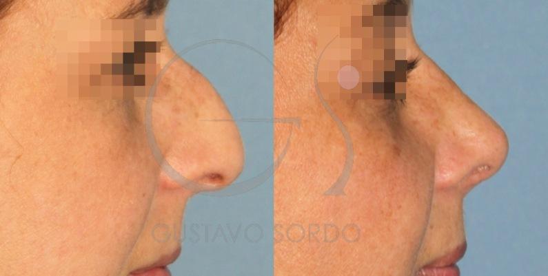 Rinoplastia y lipofilling en mujer de 33 años: Fotos del antes y después