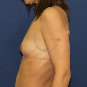 Antes del aumento de mamas anatómico