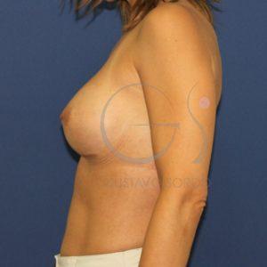 Después del aumento de mamas anatómico