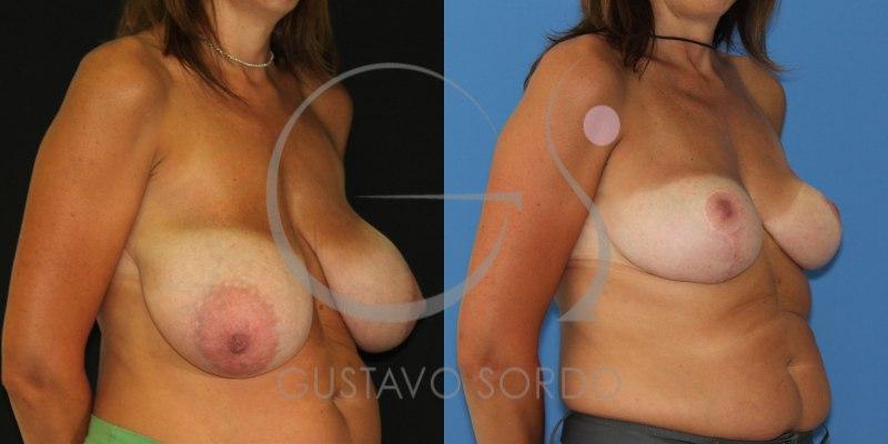 Antes y después de una reducción de pecho con hipertrofia mamaria