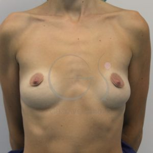 Aumento de mamas tras la lactancia materna. Antes