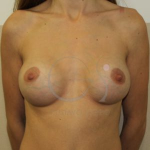 Aumento de mamas tras la lactancia materna. Después