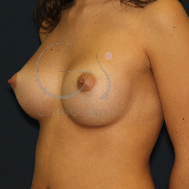 Aumento de mamas: pensando en el futuro de tu implante