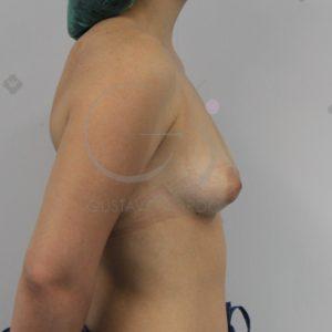 Aumento de pecho en mamas tuberosas. Antes