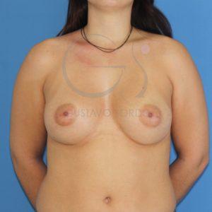 Aumento de pecho en mamas tuberosas. Después