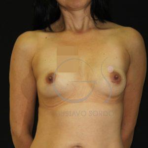 Aumento de mamas tras lactancia. Antes