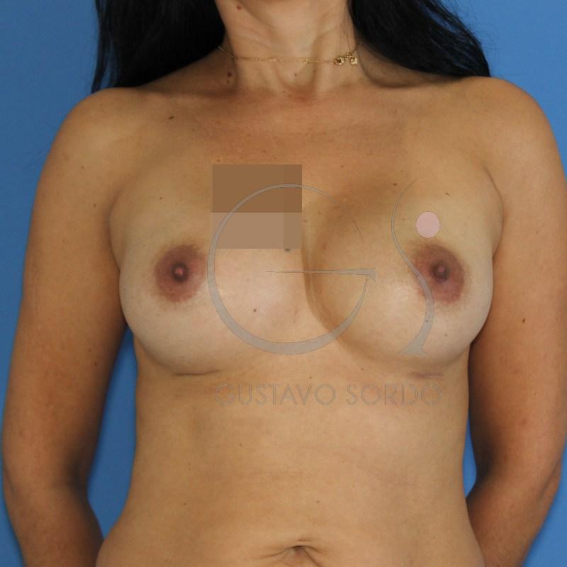 La narcosis después de la operación sobre los pechos