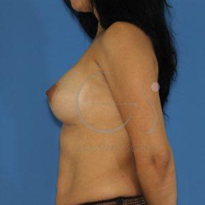 Aumento de mamas tras lactancia. Después