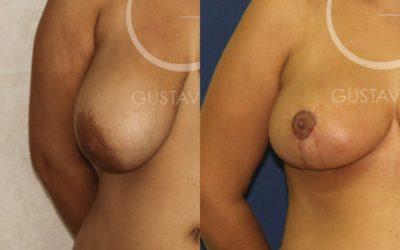 Reducción de senos mediante cirugía plástica en Madrid