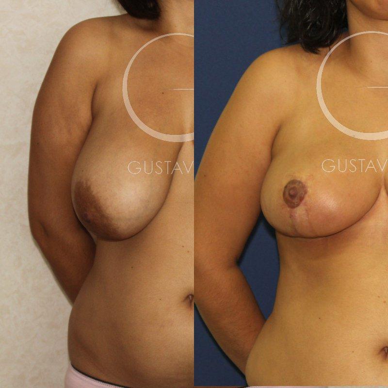 operación de cirugía estética para reducción de pecho en MAdrid