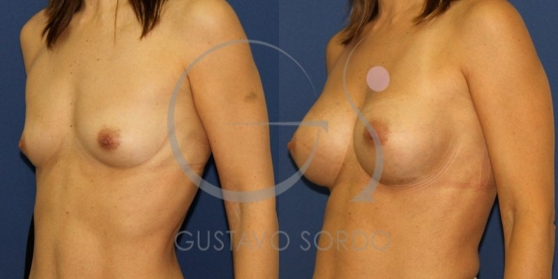 Antes y después de un aumento de mamas con implantes anatómicos
