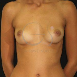 Aumento de mamas con implantes redondos. Antes