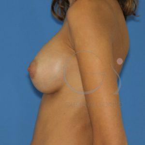 Aumento de mamas con implantes redondos. Después