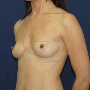 Aumento de pecho en mujer delgada. Antes