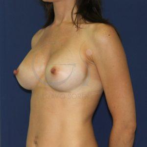 Aumento de pecho en mujer delgada. Después