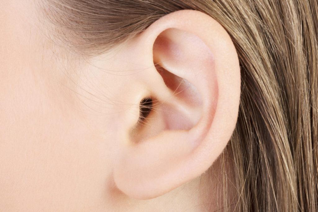 Corrección orejas de soplillo