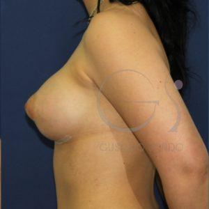 Aumento de mamas en mama tuberosa. Después de un mes
