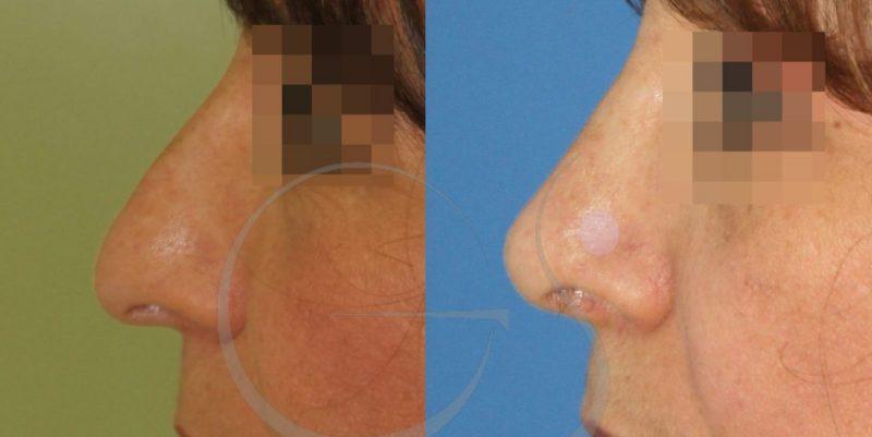 Rinoplastia y Lipofilling: Fotos del antes y después de la operación
