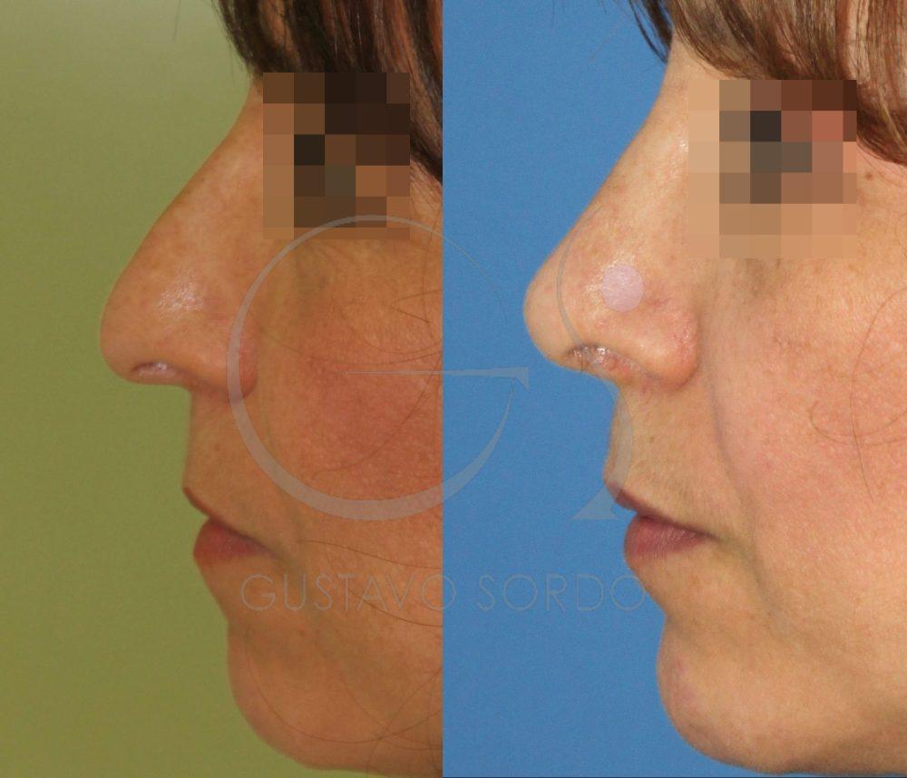 Rinoplastia y lipofilling facial. Perfil