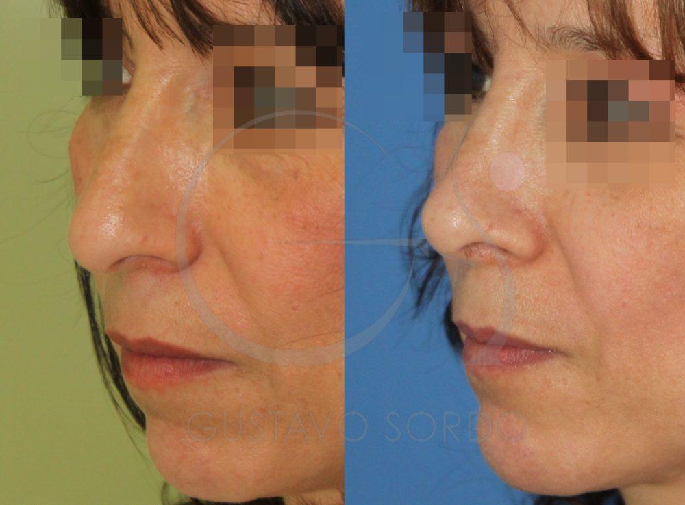 Rinoplastia y lipofilling facial. Semiperfil