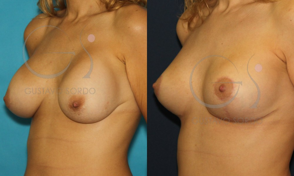 Segunda operación de pecho: ¿Se pueden sustituir las prótesis? ¿Cuánto tiempo debe pasar para hacerlo?