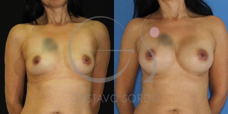 Aumento de mamas tras la lactancia: Fotos del antes y después