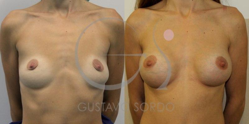 Aumento de pecho con prótesis redondas tras la lactancia materna [FOTOS]