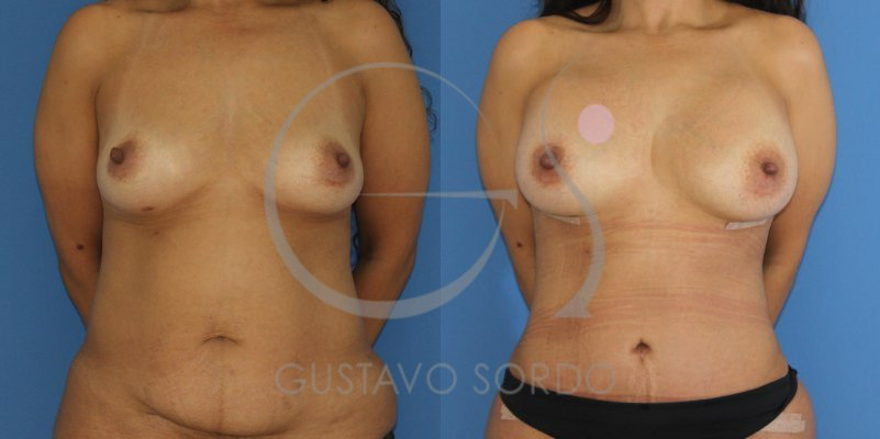 Mommy makeover: Abdominoplastia + aumento de pecho [FOTOS]