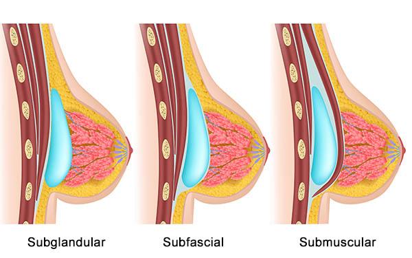 Cuál es la posición de los implantes mamarios en un aumento de pecho 24h Recovery