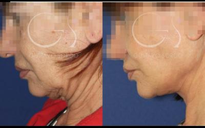 Precio del Lifting facial en la clínica de cirugía estética del Dr. Sordo
