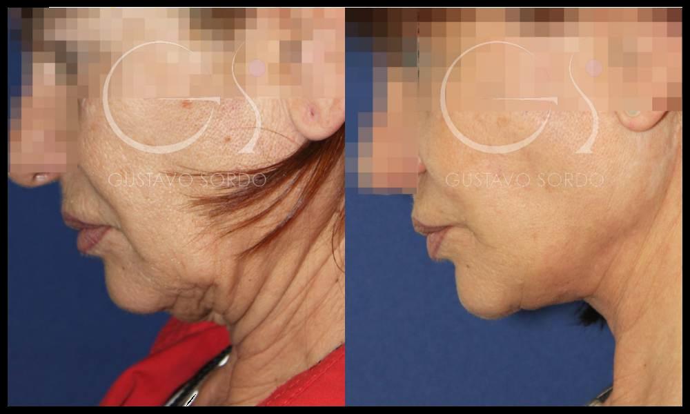 ¿Cuál es el precio de una operación de lifting de cara en Madrid?