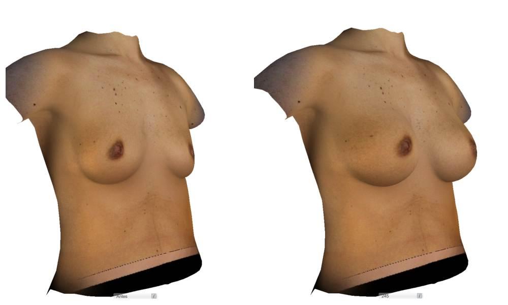 simulación aumento de pecho