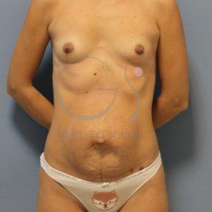 antes aumento de pecho mas abdominoplastia frente