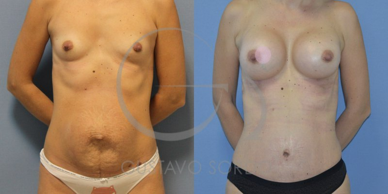 Apretar el pecho sin implantov