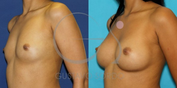 Antes y después de un aumento de pecho