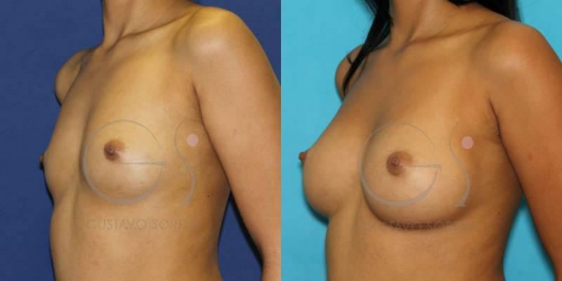 Antes y después de un aumento de pecho con anatómicas